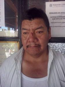 Ignacio Segundo despues de ser golpeado por el grupo agresor