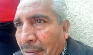 Tomás Mezas, miembro de la campaña #SuLibertadEsSuDerecho luego de la Agresión.